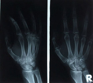 Pain relief using stem cells, hand x-ray